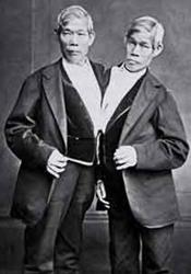 A Common Law Tragedy: Life, Death and Siamese Twins Rosie and Gracie Attard
